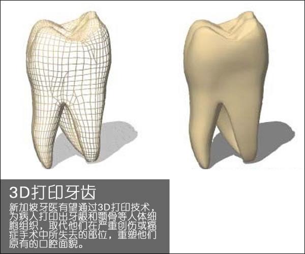 个性化医疗3D打印实战案例与研究成果的问答整理_3d打印服务公司