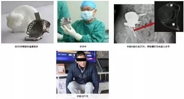 3d打印在医疗领域的应用 3D打印与医疗行业白皮书